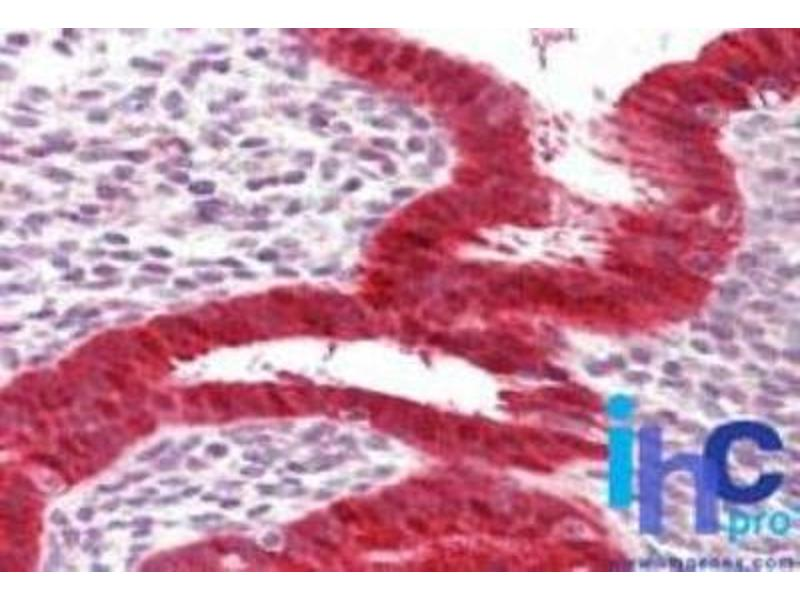 Immunohistochemistry (Paraffin-embedded Sections) (IHC (p)) image for anti-DEAD (Asp-Glu-Ala-Asp) Box Polypeptide 58 (DDX58) antibody (ABIN4350540)