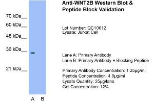 Western Blotting (WB) image for anti-WNT2B antibody (Wingless-Type MMTV Integration Site Family, Member 2B) (Middle Region) (ABIN2776711)