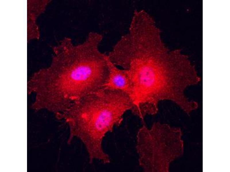 Immunocytochemistry (ICC) image for anti-Plexin A2 (Plxna2) (AA 35-1237) antibody (ABIN4900258)
