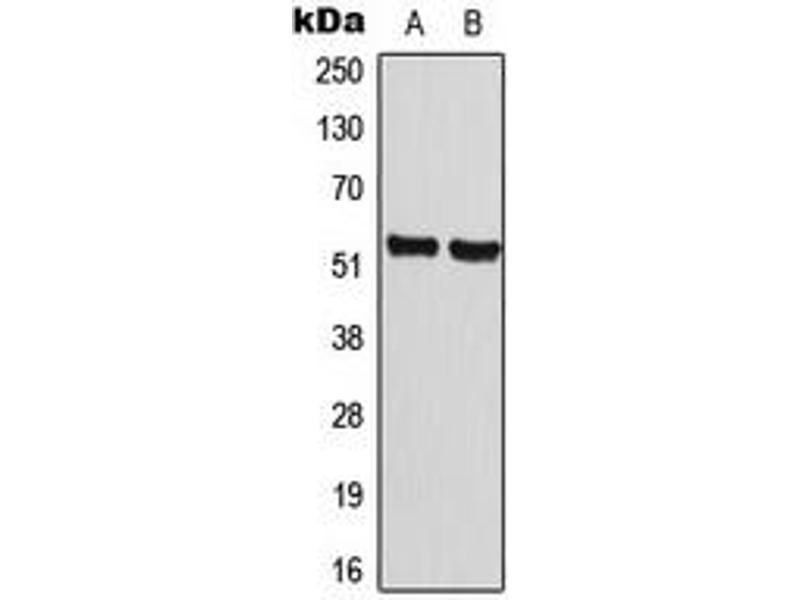 Western Blotting (WB) image for anti-Cyclin A1 antibody (CCNA1) (C-Term) (ABIN2704688)