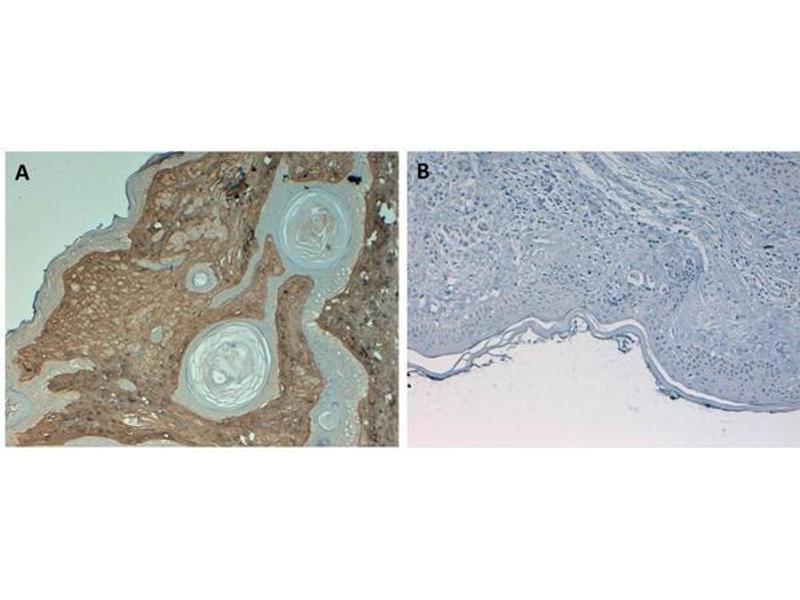 Image no. 2 for anti-Collagen, Type I (COL1) antibody (Biotin) (ABIN5596821)