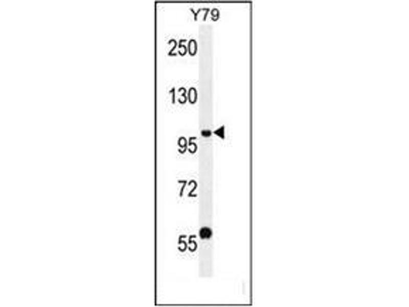 Western Blotting (WB) image for anti-PHF20 antibody (PHD Finger Protein 20) (AA 130-159) (ABIN954119)