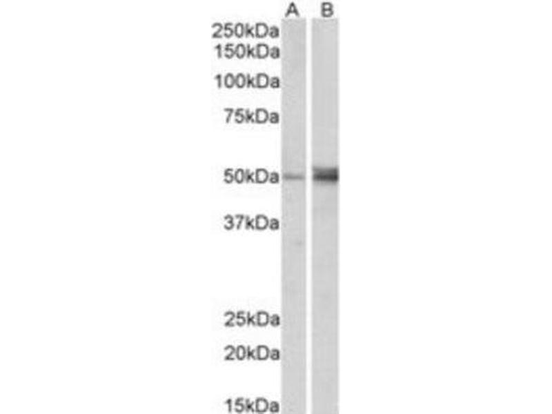 Western Blotting (WB) image for anti-Forkhead Box L2 (FOXL2) (C-Term) antibody (ABIN249959)