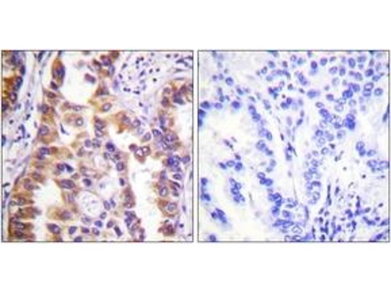 Immunohistochemistry (IHC) image for anti-TSC2 antibody (Tuberous Sclerosis 2) (ABIN1532423)
