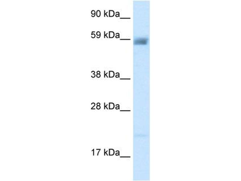 Western Blotting (WB) image for anti-Amiloride-Sensitive Cation Channel 3 (ACCN3) (N-Term) antibody (ABIN183138)