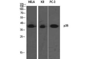 Image no. 3 for anti-Mitogen-Activated Protein Kinase 14 (MAPK14) antibody (ABIN3188074)