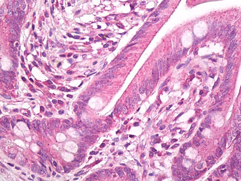Immunohistochemistry (IHC) image for anti-Heat Shock 27kDa Protein 1 (HSPB1) (AA 50-100) antibody (ABIN1102181)