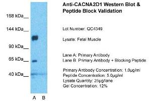Image no. 2 for anti-Calcium Channel, Voltage-Dependent, alpha 2/delta Subunit 1 (CACNA2D1) (Middle Region) antibody (ABIN2776091)