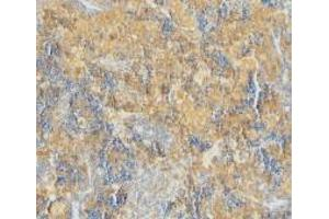 Immunohistochemistry (Paraffin-embedded Sections) (IHC (p)) image for anti-Caspase 4 antibody (Caspase 4, Apoptosis-Related Cysteine Peptidase) (N-Term) (ABIN499561)