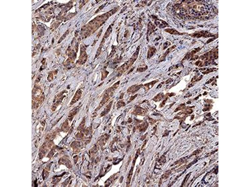 Immunohistochemistry (IHC) image for anti-Baculoviral IAP Repeat-Containing 5 (BIRC5) antibody (ABIN4900855)