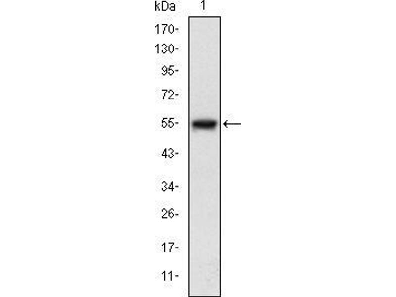 Western Blotting (WB) image for anti-Mitogen-Activated Protein Kinase Kinase Kinase 5 (MAP3K5) antibody (ABIN969273)