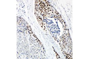 Image no. 4 for anti-Tumor Protein P63 (TP63) (AA 664-680), (C-Term) antibody (ABIN3044067)