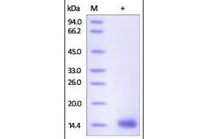 Image no. 1 for Cystatin D (CST5) (AA 21-142) protein (His tag) (ABIN2180922)