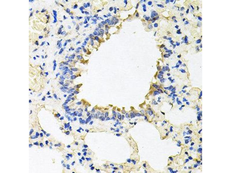 Image no. 3 for anti-Calumenin (CALU) antibody (ABIN2561545)