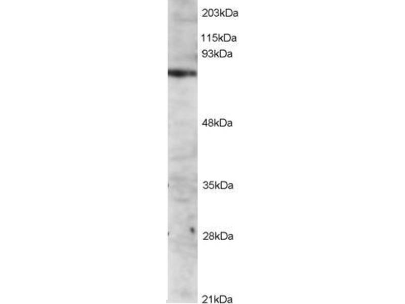 Western Blotting (WB) image for IL2-Inducible T-Cell Kinase (ITK) peptide (ABIN369790)