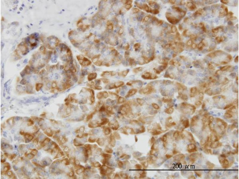Immunostaining (ISt) image for anti-Mitogen-Activated Protein Kinase 14 (MAPK14) (AA 260-360), (partial) antibody (ABIN514653)