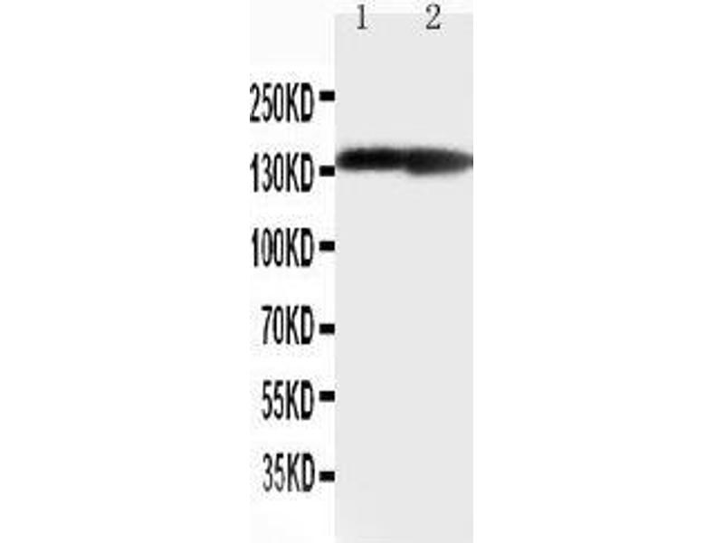 Western Blotting (WB) image for anti-Collagen, Type II, alpha 1 (COL2A1) (AA 1222-1241), (C-Term) antibody (ABIN3042879)
