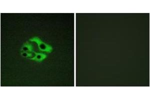 Immunofluorescence (IF) image for anti-BAD antibody (BCL2-Associated Agonist of Cell Death) (pSer134) (ABIN1531524)