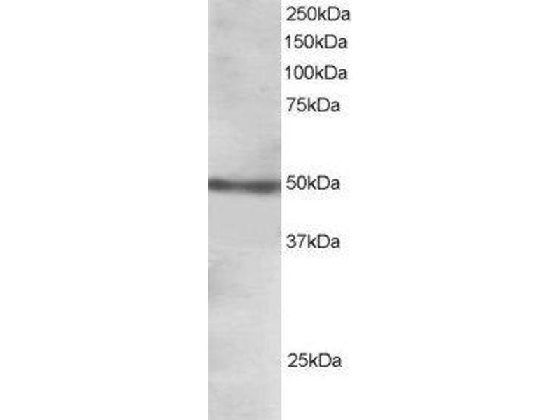 Western Blotting (WB) image for anti-Forkhead Box L2 (FOXL2) (C-Term) antibody (ABIN185040)