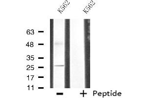 Image no. 2 for anti-CDC42 Effector Protein (Rho GTPase Binding) 3 (CDC42EP3) antibody (ABIN6258453)