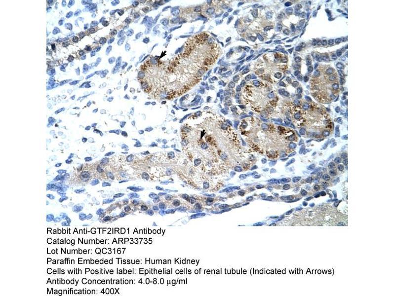 Immunohistochemistry (IHC) image for anti-GTF2I Repeat Domain Containing 1 (GTF2IRD1) (C-Term) antibody (ABIN309711)