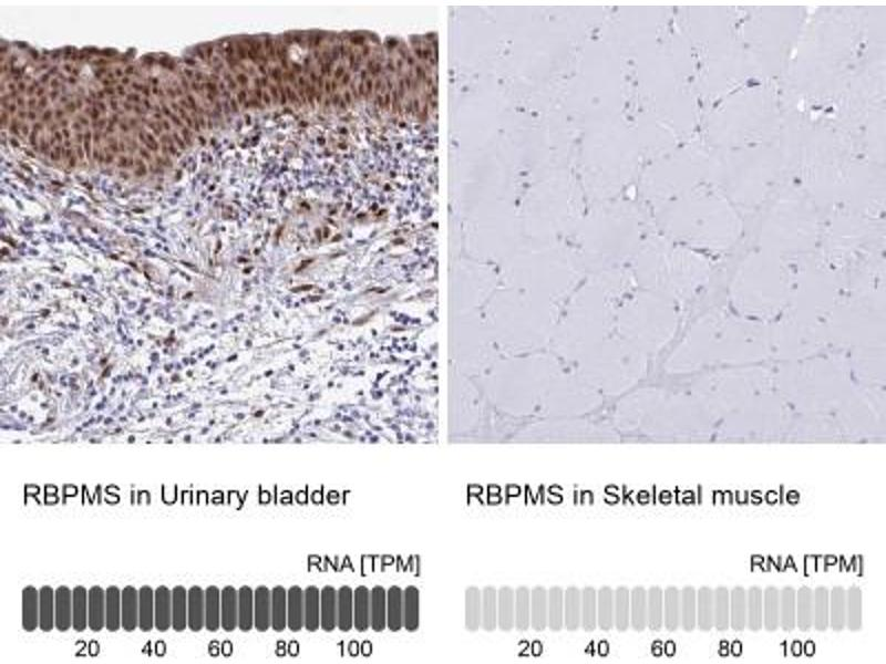 Immunohistochemistry (Paraffin-embedded Sections) (IHC (p)) image for anti-RNA Binding Protein with Multiple Splicing (RBPMS) antibody (ABIN4349702)
