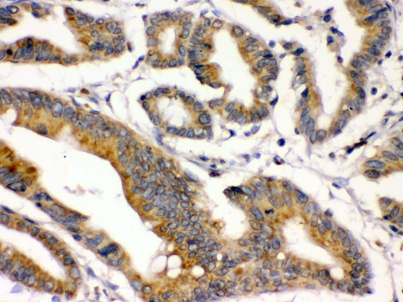 Immunohistochemistry (IHC) image for anti-Bone Morphogenetic Protein 2 (BMP2) (AA 283-312), (C-Term) antibody (ABIN3043489)