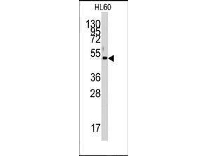 Western Blotting (WB) image for anti-PDK4 antibody (Pyruvate Dehydrogenase Kinase, Isozyme 4) (Middle Region) (ABIN359100)