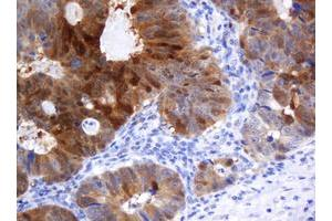 Image no. 1 for anti-Cytidine Monophosphate (UMP-CMP) Kinase 1, Cytosolic (CMPK1) antibody (ABIN1497546)