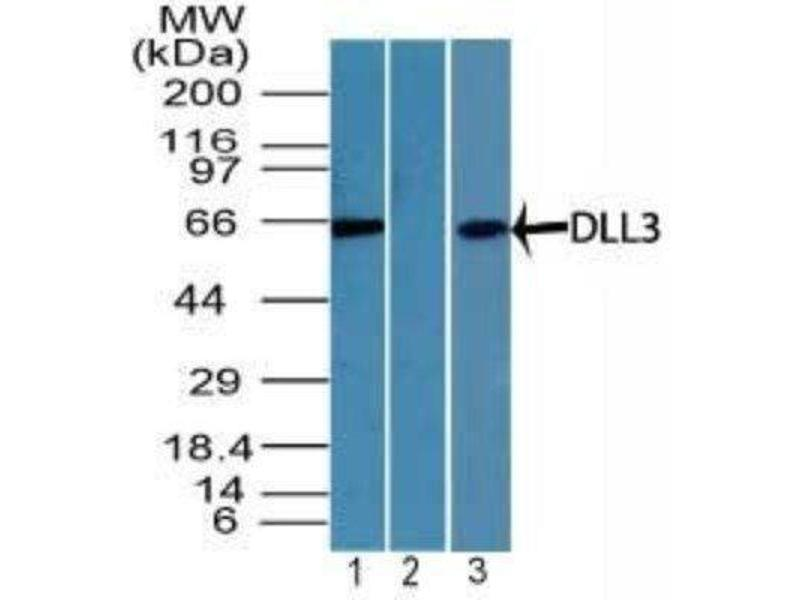 Western Blotting (WB) image for anti-delta Like Protein 3 (DLL3) antibody (ABIN4305359)