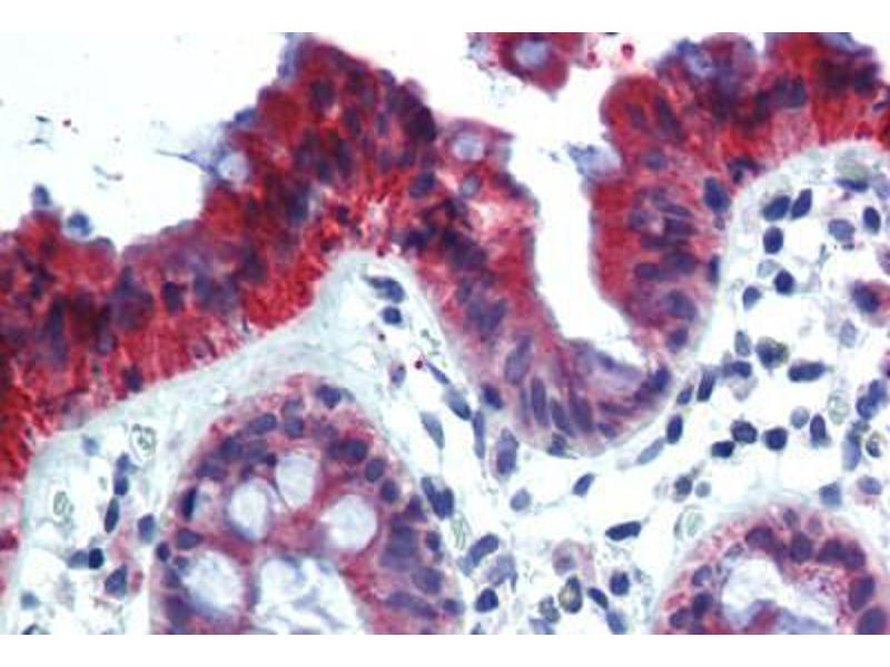 Immunohistochemistry (Paraffin-embedded Sections) (IHC (p)) image for anti-KRT18 antibody (Keratin 18)  (FITC) (ABIN462333)