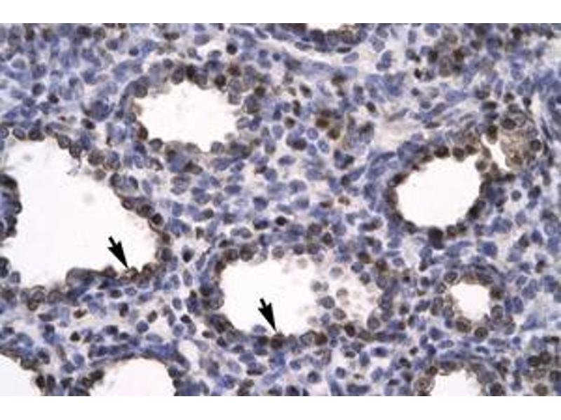 image for anti-High Mobility Group Box 2 (HMGB2) (C-Term) antibody (ABIN216100)