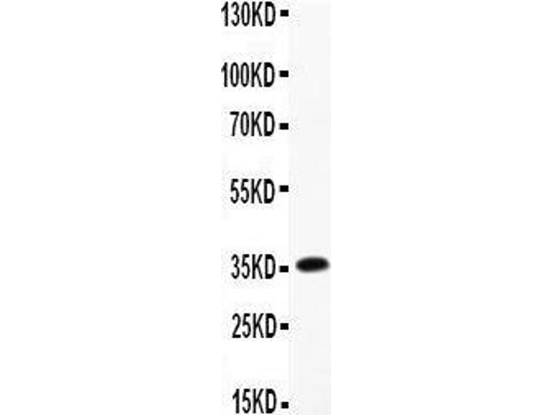 Western Blotting (WB) image for anti-Ciliary Neurotrophic Factor (CNTF) (AA 2-198) antibody (ABIN3042752)