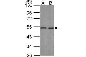 Image no. 2 for anti-Cleavage and Polyadenylation Factor I Subunit 1 (CLP1) (Center) antibody (ABIN2856997)
