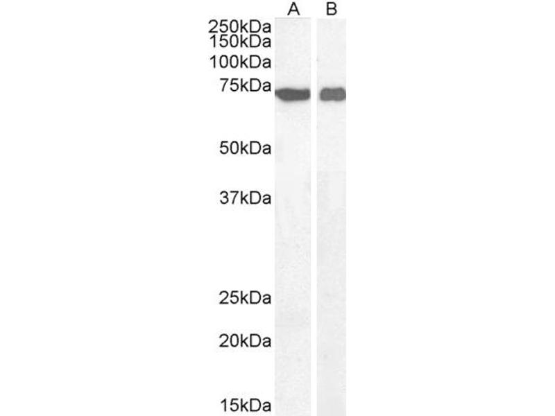 Image no. 6 for anti-Apoptosis-Inducing Factor, Mitochondrion-Associated, 1 (AIFM1) (C-Term) antibody (ABIN2630015)