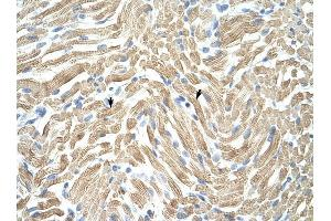 Immunohistochemistry (IHC) image for anti-Tropomyosin 1 (Alpha) (TPM1) antibody (ABIN629646)
