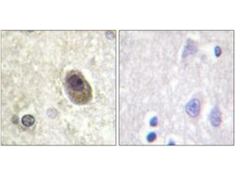 Immunohistochemistry (IHC) image for anti-BCL2-Associated Agonist of Cell Death (BAD) (AA 100-149), (pSer134) antibody (ABIN1531524)