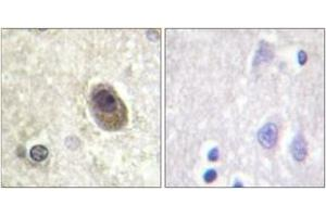 Immunohistochemistry (IHC) image for anti-BAD antibody (BCL2-Associated Agonist of Cell Death) (pSer134) (ABIN1531524)