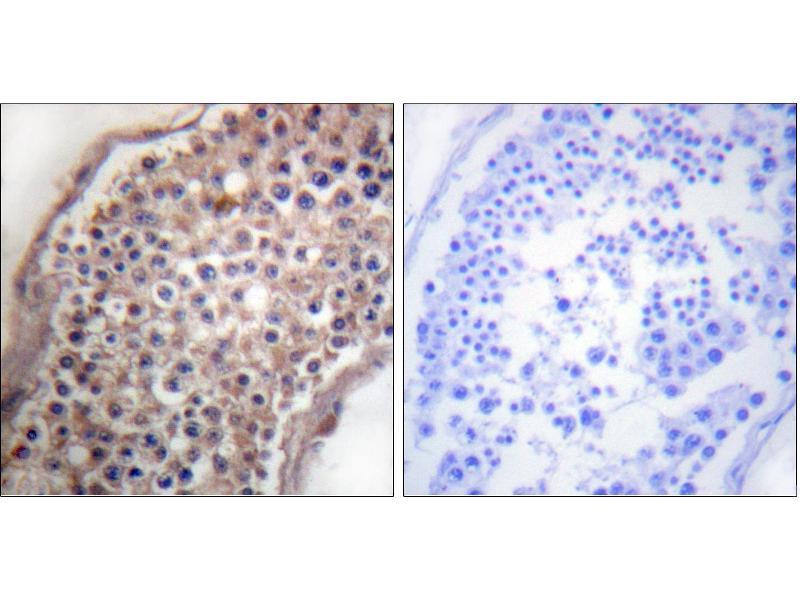 Immunohistochemistry (IHC) image for anti-Ephrin B2 antibody (EFNB2) (Tyr330) (ABIN2164433)