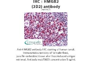 Image no. 1 for anti-High Mobility Group Box 2 (HMGB2) (AA 1-196), (full length) antibody (ABIN1723480)