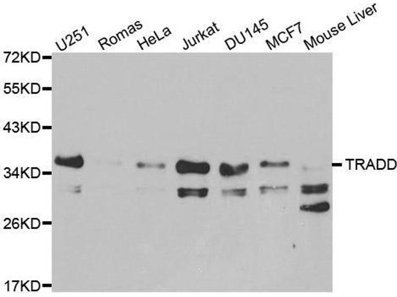 Western Blotting (WB) image for anti-TNFRSF1A-Associated Via Death Domain (TRADD) antibody (ABIN3021542)