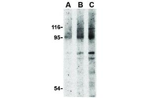 Image no. 2 for anti-Nucleotide-Binding Oligomerization Domain Containing 2 (NOD2) (N-Term) antibody (ABIN6655361)
