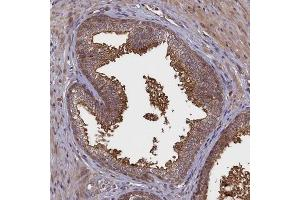 Immunohistochemistry (IHC) image for anti-Chromosome 18 Open Reading Frame 22 (C18orf22) antibody (ABIN4349536)