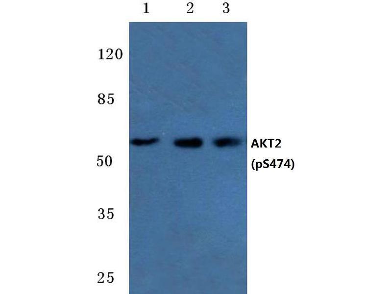 Western Blotting (WB) image for anti-AKT2 antibody (V-Akt Murine Thymoma Viral Oncogene Homolog 2) (pSer474) (ABIN498710)