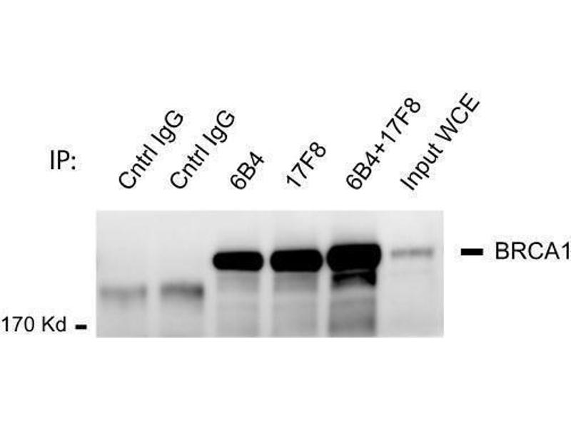 Western Blotting (WB) image for anti-BRCA1 antibody (Breast Cancer 1) (AA 762-1315) (ABIN136329)