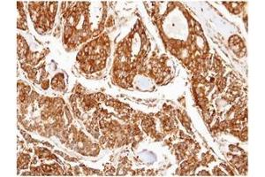 Immunohistochemistry (Paraffin-embedded Sections) (IHC (p)) image for anti-PPP2R5D antibody (Protein Phosphatase 2, Regulatory Subunit B', delta) (C-Term) (ABIN497959)