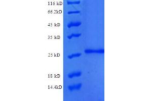 Image no. 1 for Protein C Receptor, Endothelial (PROCR) (AA 18-210), (partial) protein (His tag) (ABIN5712468)