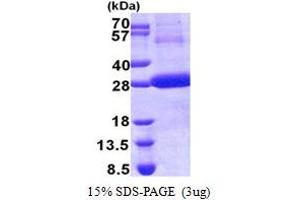 Image no. 1 for Cathepsin F (CTSF) (AA 271-484) protein (His tag) (ABIN5853153)
