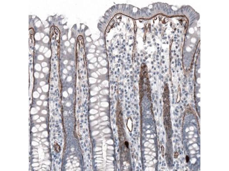 Immunohistochemistry (Paraffin-embedded Sections) (IHC (p)) image for anti-Laminin, alpha 5 (LAMA5) antibody (ABIN4330115)