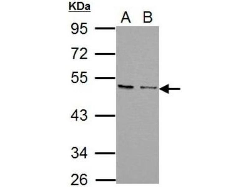 Western Blotting (WB) image for anti-Chemokine (C-X-C Motif) Receptor 7 (CXCR7) (Center) antibody (ABIN441317)